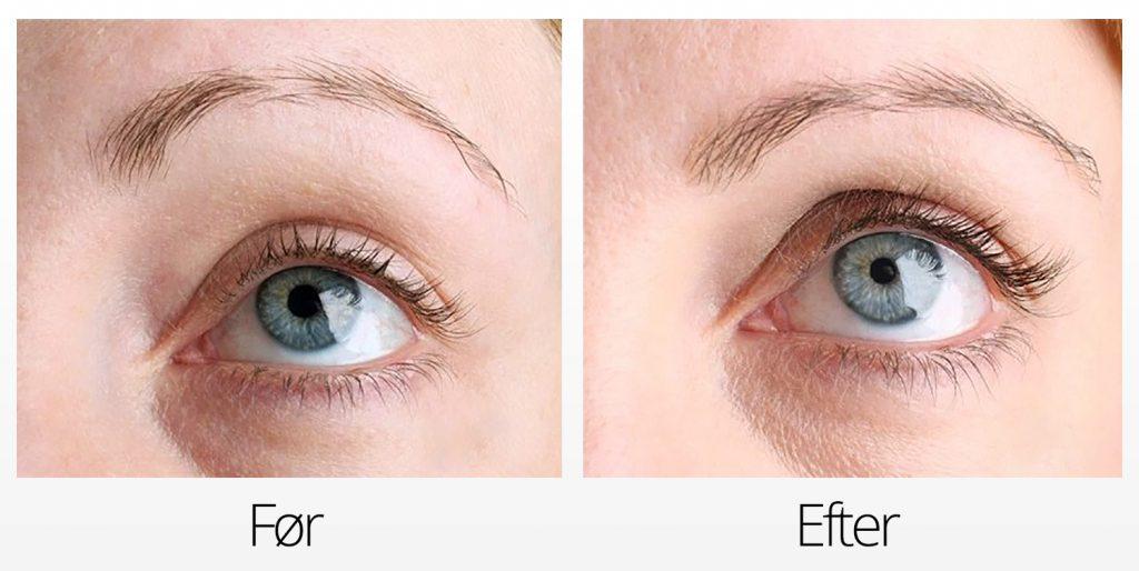RevitaLash Advanced Eyelash Conditioner Serum Vippeserum Effekt Før og Efter