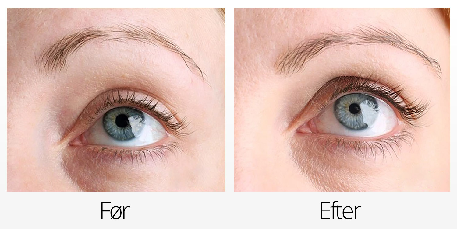RevitaLash Advanced Eyelash Conditioner Serum Vippeserum Effekt Før og Efter